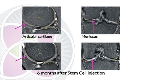 MRI of cartilage in the knee that has been regenerated with the use of stem cells.