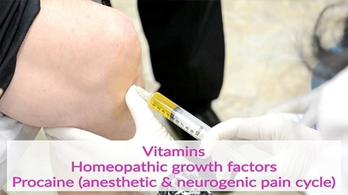 Preparing the joint for injection of stem cells by first injecting vitamins, homeopathic growth factors and procaine.