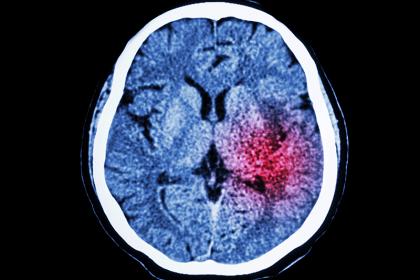 stroke x-ray