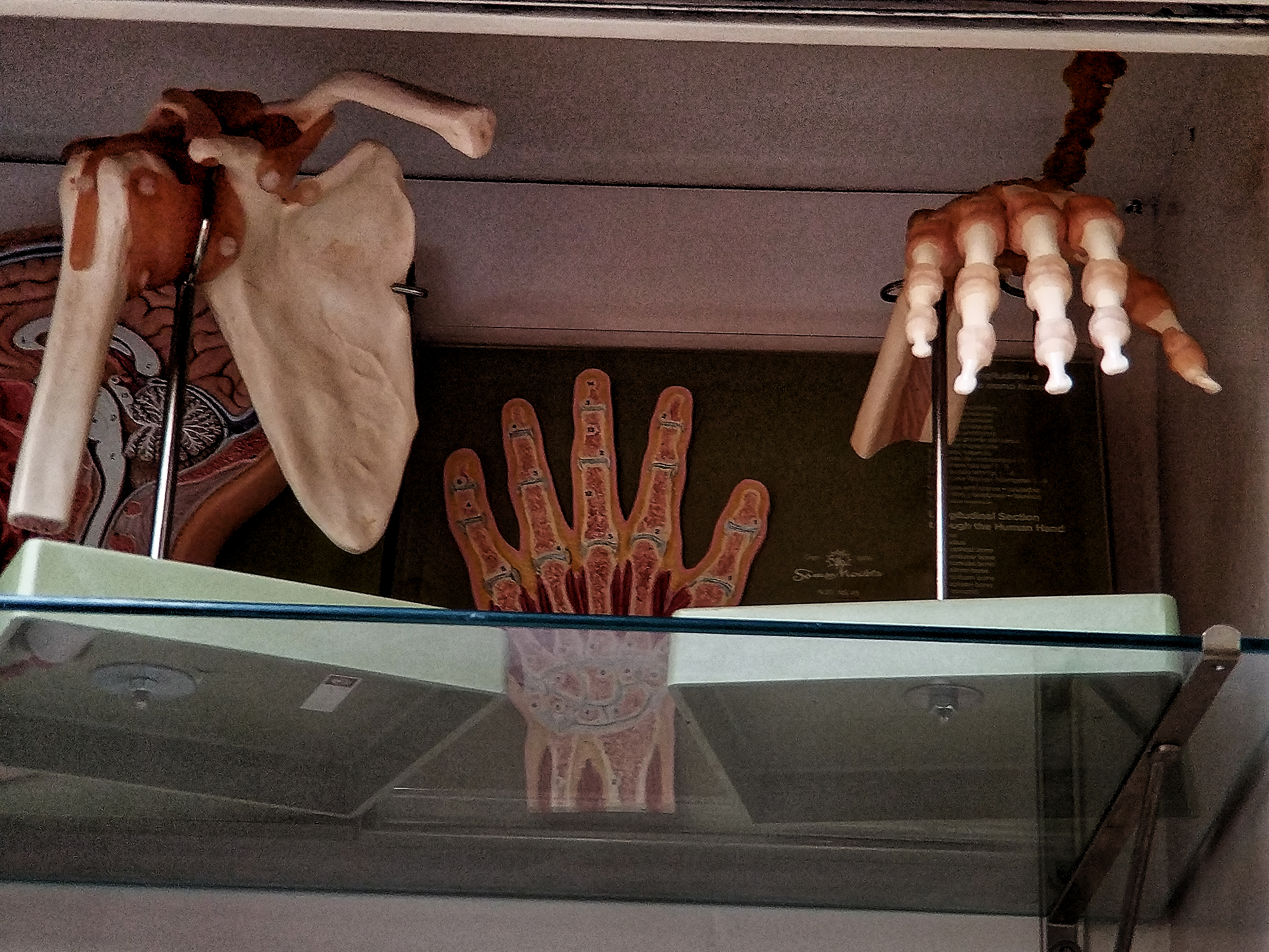 Anatomical Hand with Ligaments on Bone And Scapula Acromioclavicular Joint with Ligaments, and Hand