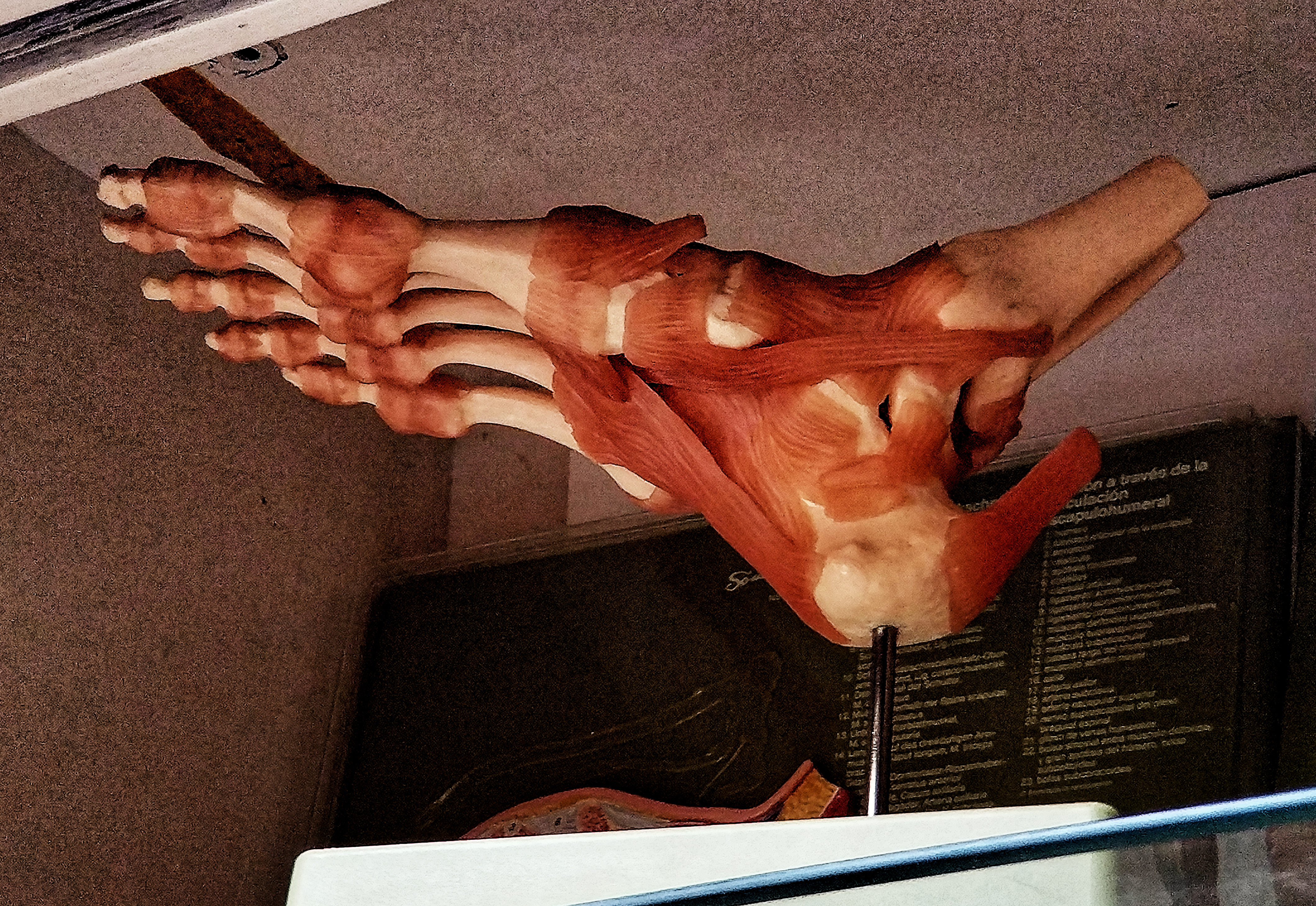 Ligament of the Foot, Bone and Ligaments