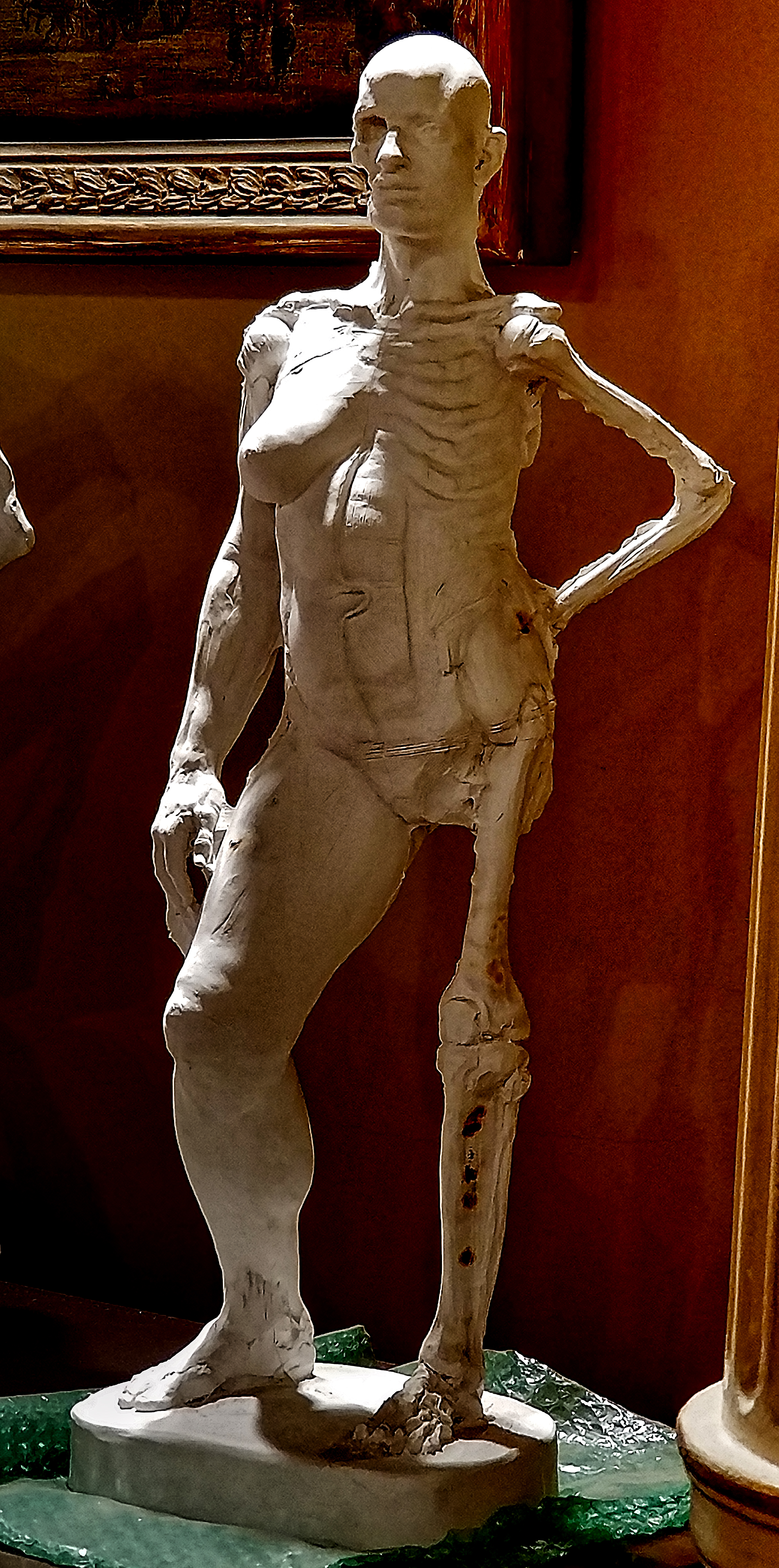 Anatomy Figure Demonstration Sculpture From Class, Plaster - unchased - raw, Anna Prussian Front Vie
