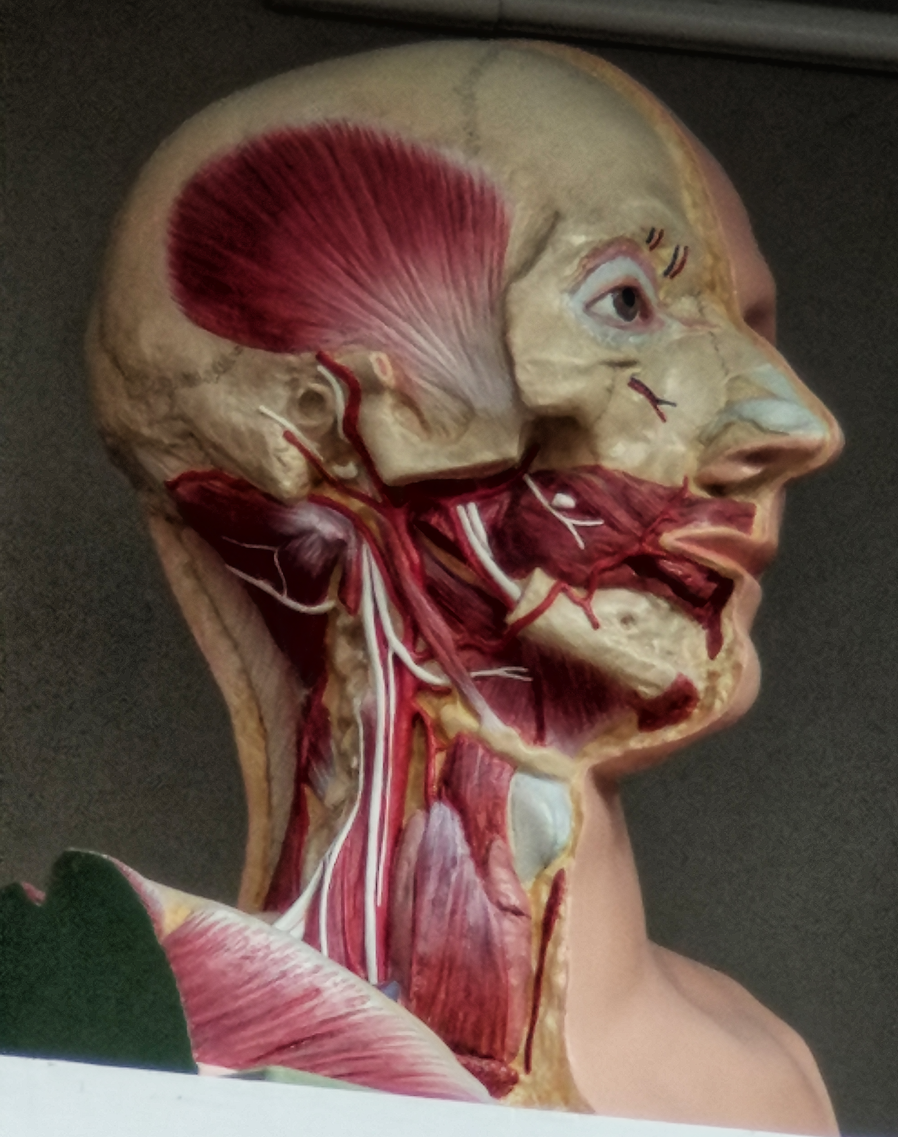 Anatomy Head Disection Level Three. Anatomical Head surface anatomy Dissection from life 1917-1920