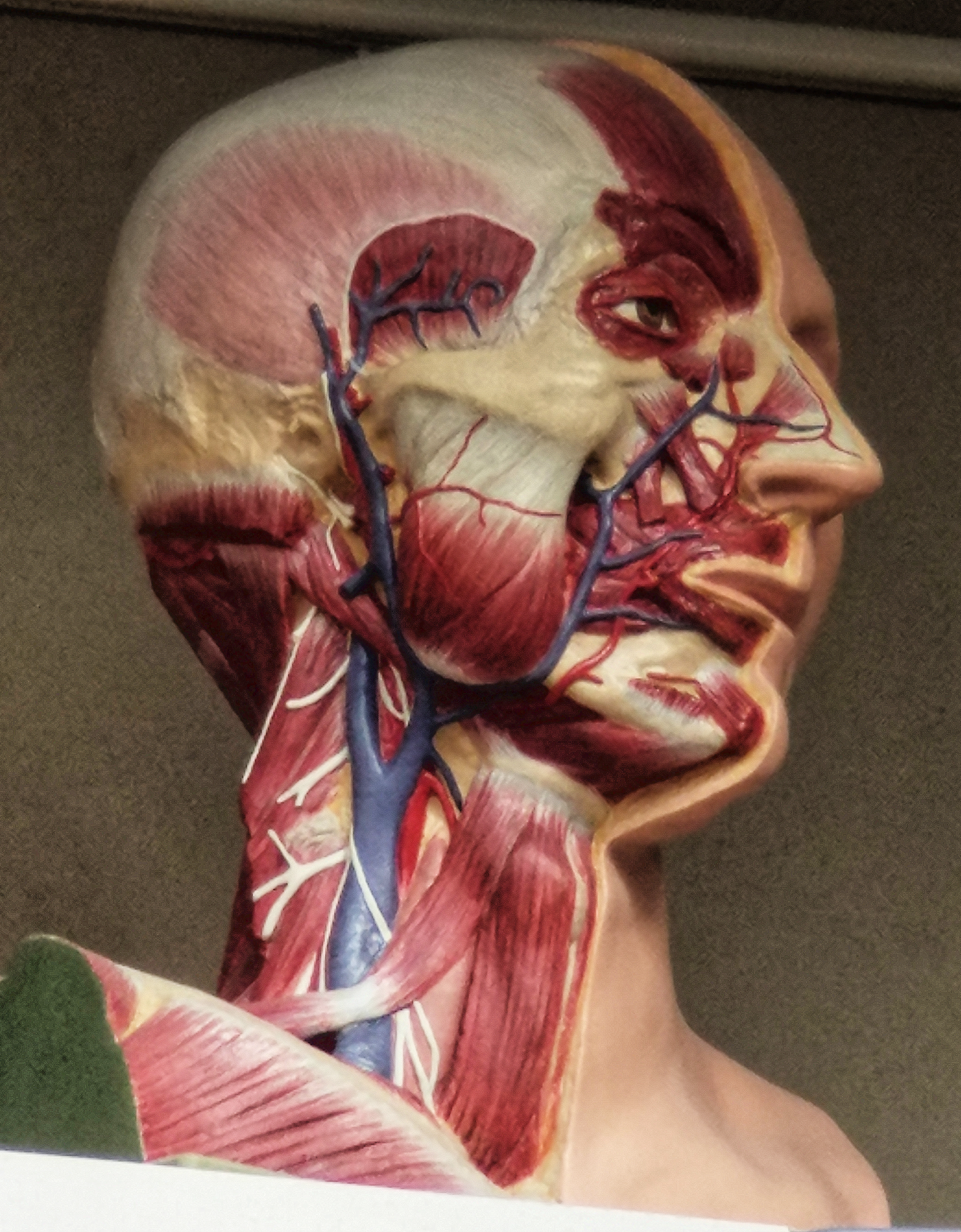 Anatomy Head Disection Level Two. Anatomical Head surface anatomy Dissection from life 1917-1920