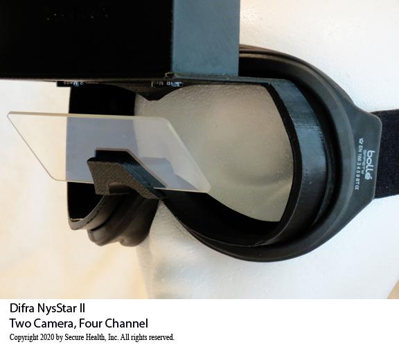 Difra NysStar II vng equipment