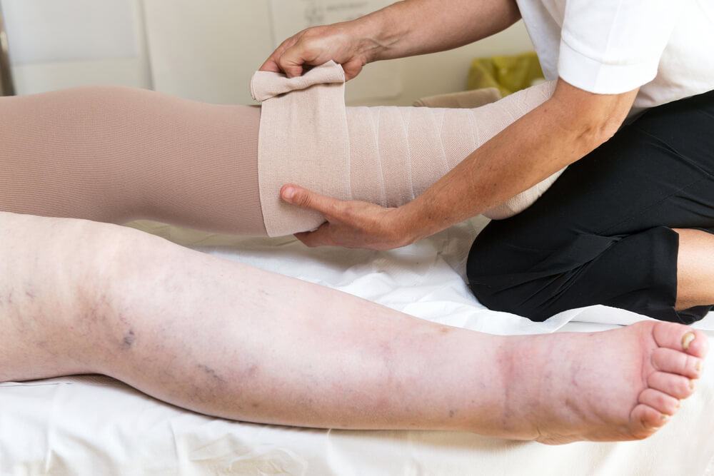 lymphedema therapy treatment options