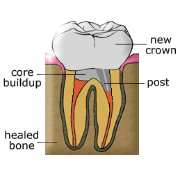My Dentist Brookline Post and Core Build Up