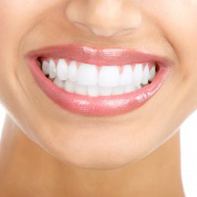 Veneers My Dentist Brookline