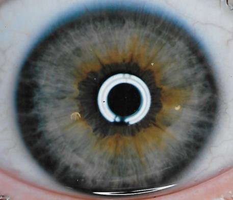 Ring of Purpose Blue Eye