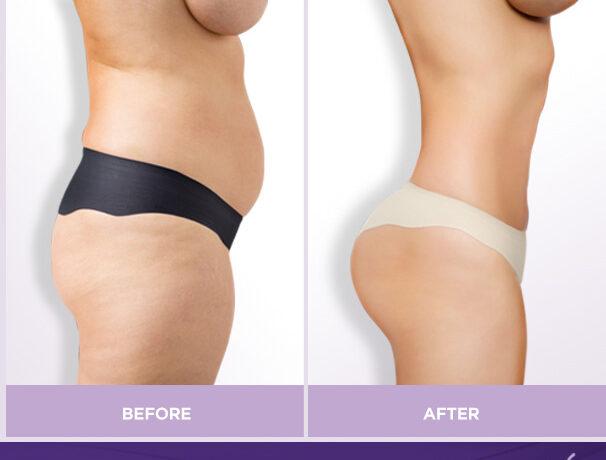 Liposuction + Fat Transfer