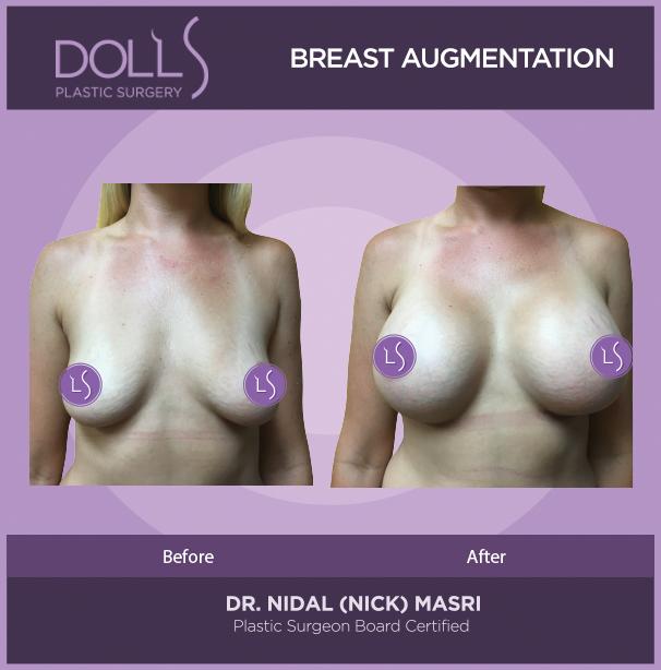 DOLLS PLASTIC SURGERY breast Augmentation
