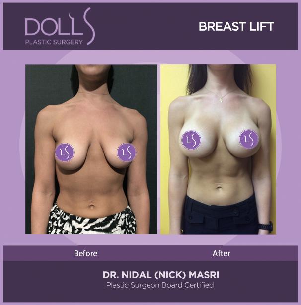 DOLLS PLASTIC SURGERY breast lift