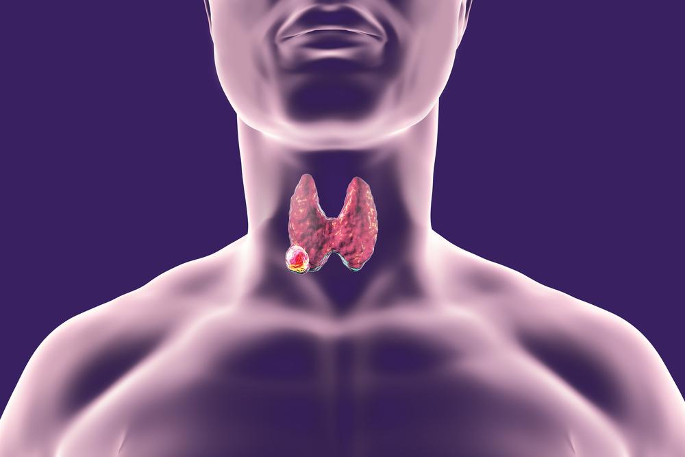 thyroid biopsy la