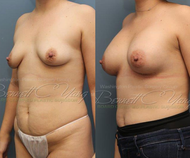 Pat13-breast_before_after_3d1