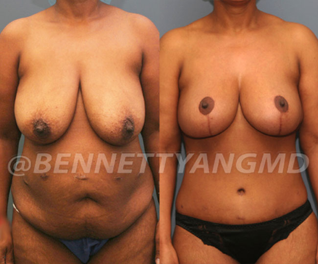Tummy-Tuck-with-Lipo-Patient-4a-before-after-271x300 (1)