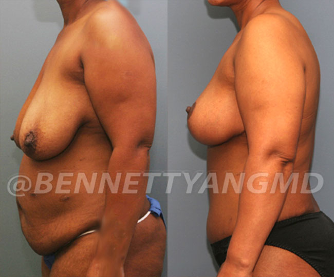 Tummy-Tuck-with-Lipo-Patient-4b-before-after-271x300 (1)