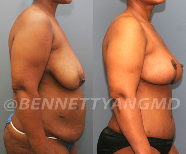Tummy-Tuck-with-Lipo-Patient-4c-before-after-271x300 (1)