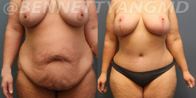 After-Weight-Loss-2d-before_after-2i (1)