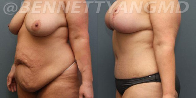After-Weight-Loss-2d-before_after-2qi