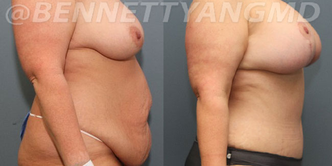 After-Weight-Loss-2d-before_after-2si