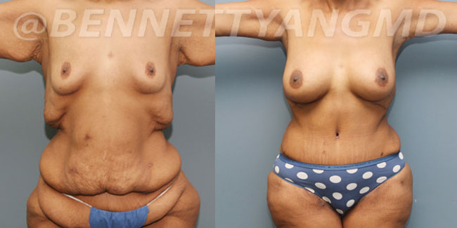 Weight Loss Surgery - Before and After