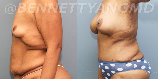 After-Weight-Loss-2d-before_after-2u