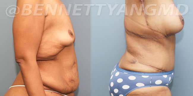 After-Weight-Loss-2d-before_after-t2