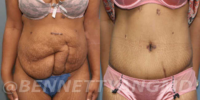 After-Weight-Lossrrection-before_after-2