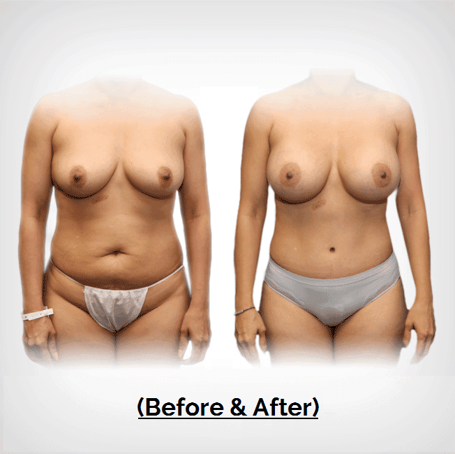 Mommy Makeover Tummy Tuck Liposuction Plastic Surgery Payment Plans