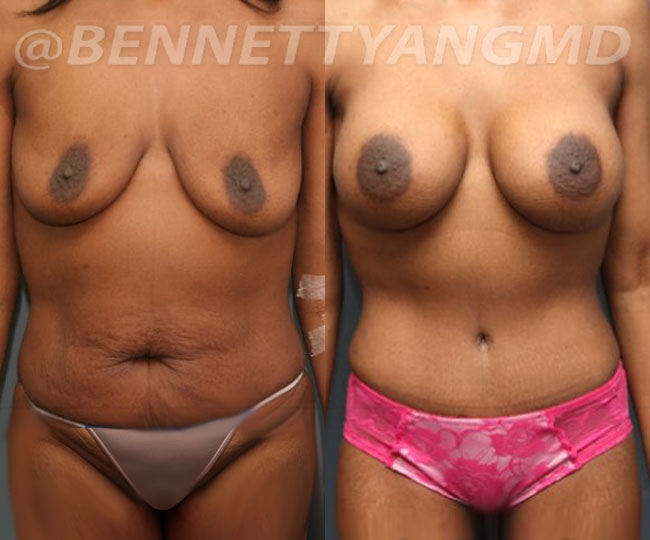 Yang-Breast-Augmentation-before-after-pt-1