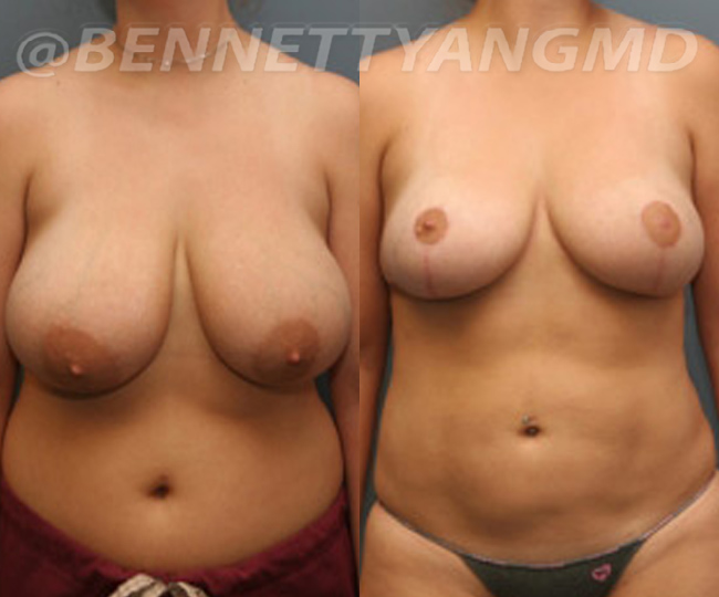 breast_aug_pt6_before-after_88n