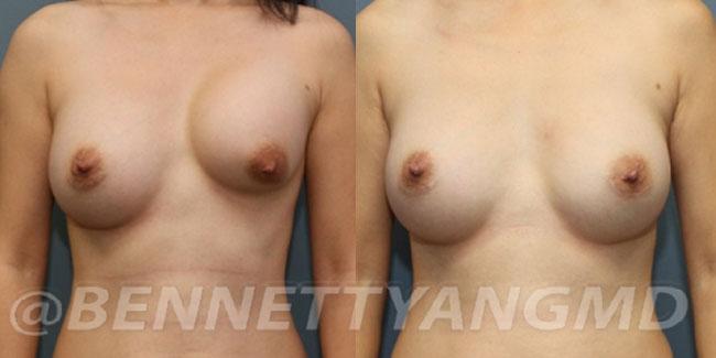 Breast Implant Capsular Contracture