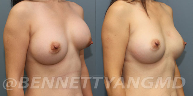 thumbs_implant-correction-before-after_1g