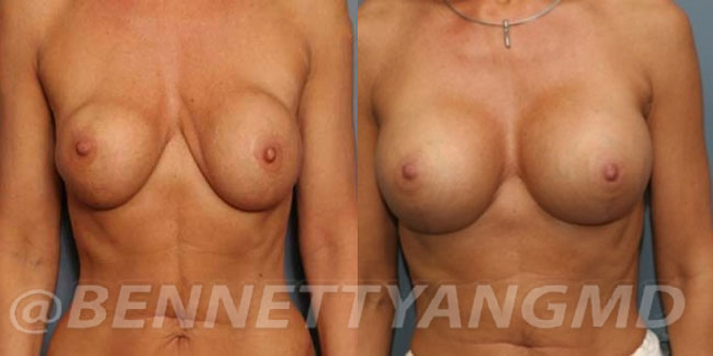 thumbs_implant-correction-before-after_2