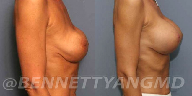 thumbs_implant-correction-before-after_2t