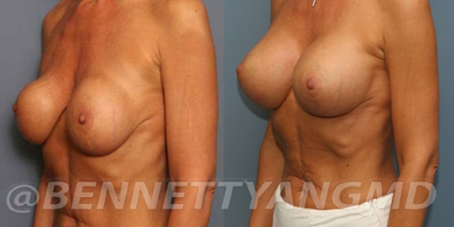 thumbs_implant-correction-before-after_2w