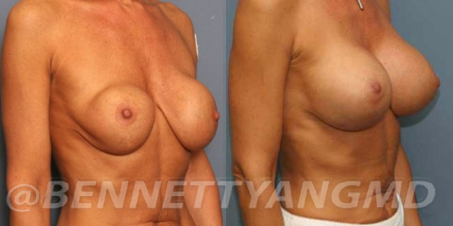 thumbs_implant-correction-before-after_2wt