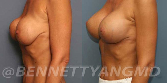 thumbs_implant-correction-before-after_2y