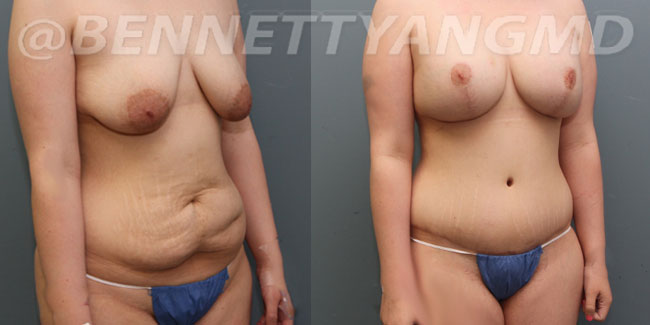thumbs_liposuction-before_after-3o
