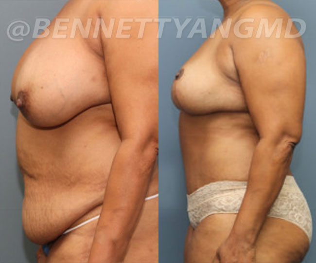 yang-mommy-makeover-patient3-before-after-front-left