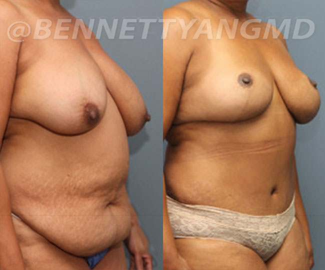 yang-mommy-makeover-patient3-before-after-front-right