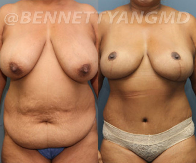 yang-mommy-makeover-patient3-before-after-front