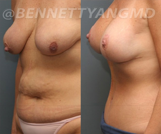 yang-mommy-makeover-patient4-before-after-left