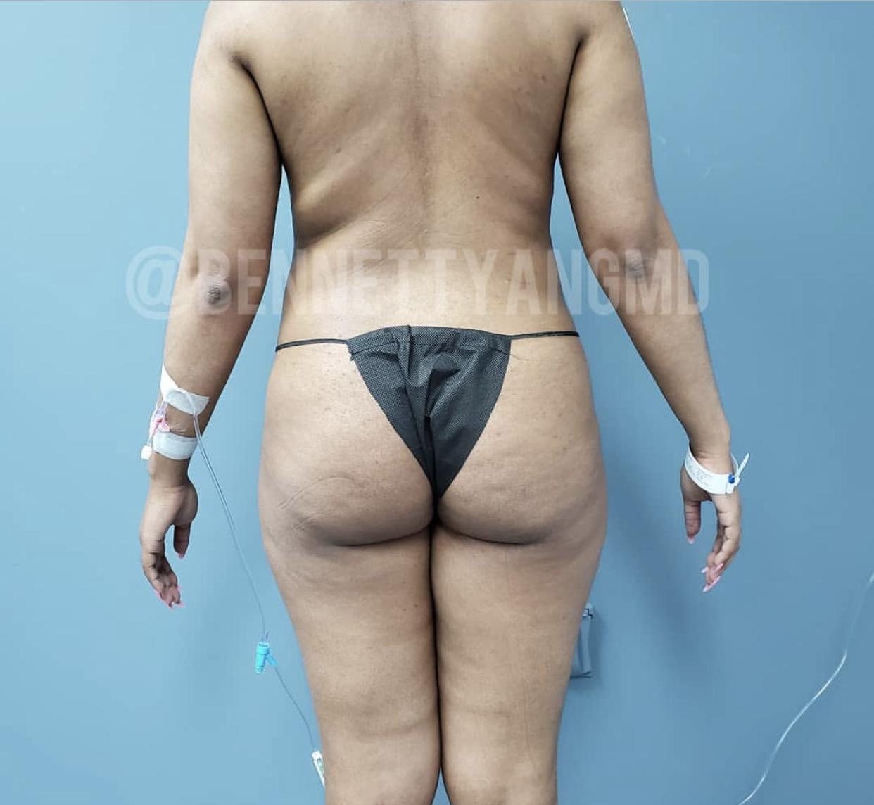 DMV BBL Plastic Surgeon, Brazilian Butt Lift Top Surgeon Maryland