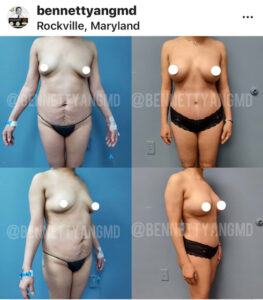 Tummy Tuck 360 Maryland - Tummy Tuck Rockville, MD