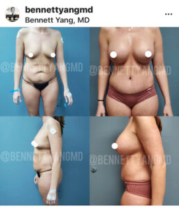 Bennett C. Yang, MD Maryland BBL Surgeon - Before After Images