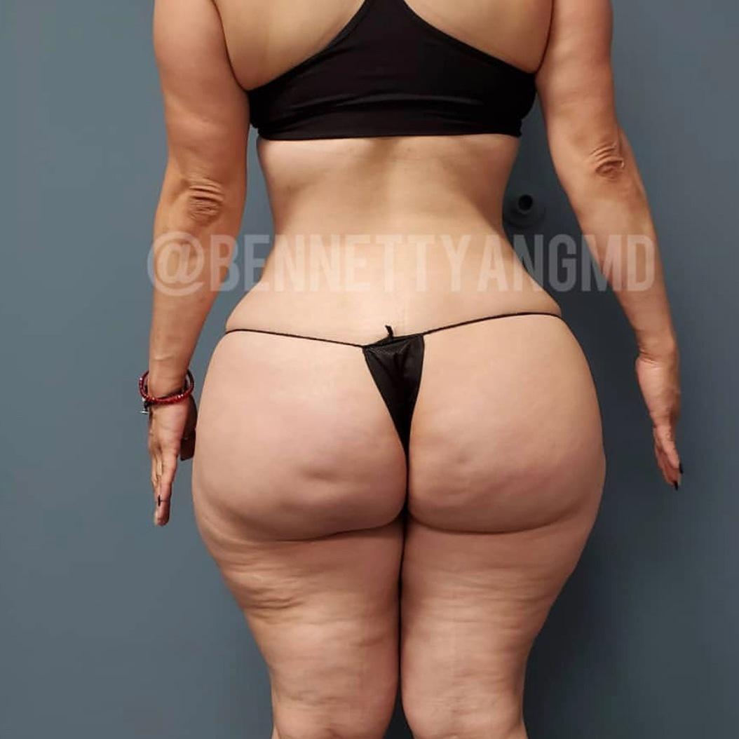 Dr. Bennett C. Yang, offering Free Brazilian Butt Lift Virtual Consult text 301.284.8122