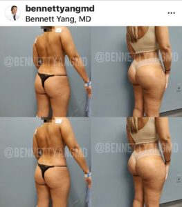 BBL with LIPO 360 Before After snatched waist