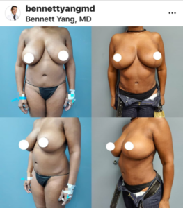 Snatched Waist BBL Lipo360 New Year Plastic Surgery Special