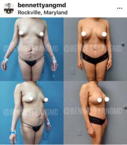 Breast Reduction Medical Insurance Reimbursement Maryland